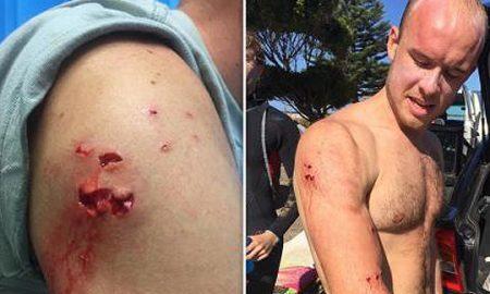 Сурфер се одбранил од ајкула удирајќи ја по муцката